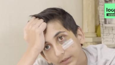 Photo of Ils m'ont donné des coups au visage» : blessé après une interpellation, Gabriel, 14 ans, témoigne (Vidéo)